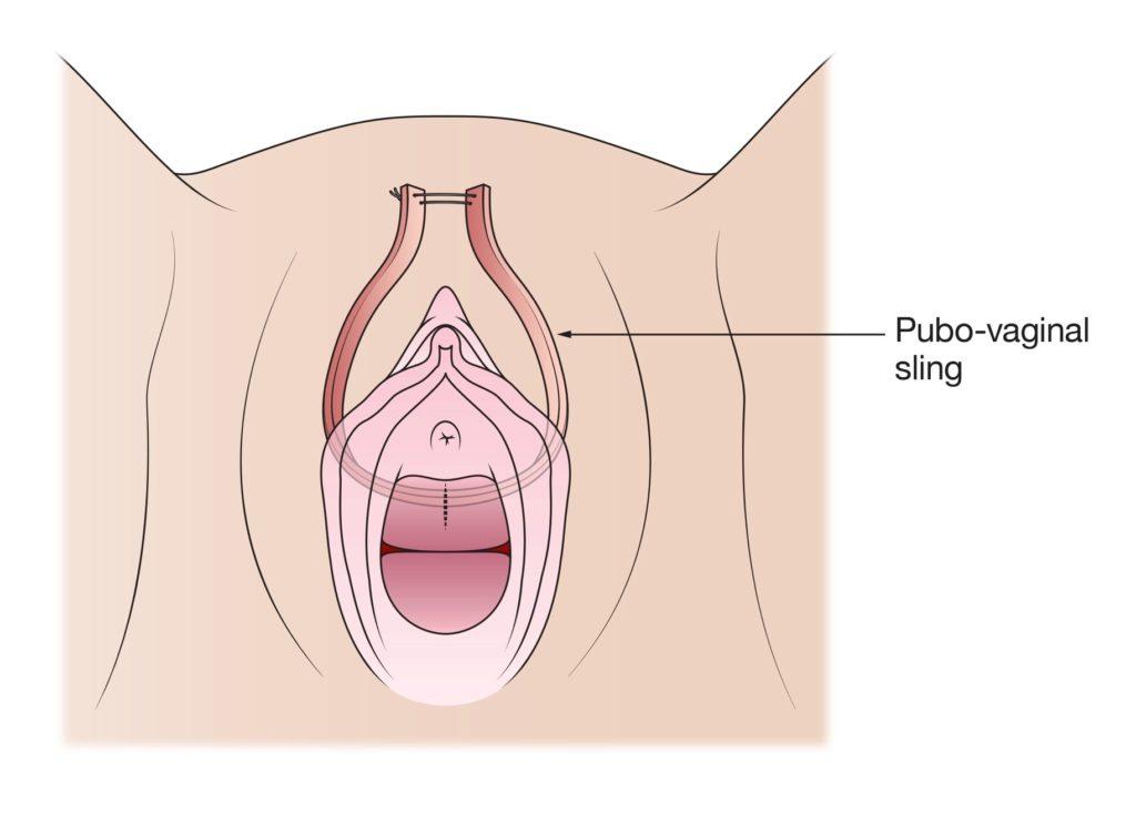 Transorbital vaginal sling video